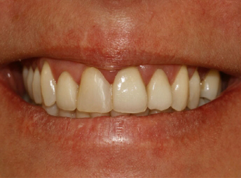 Dental Treatment - Before