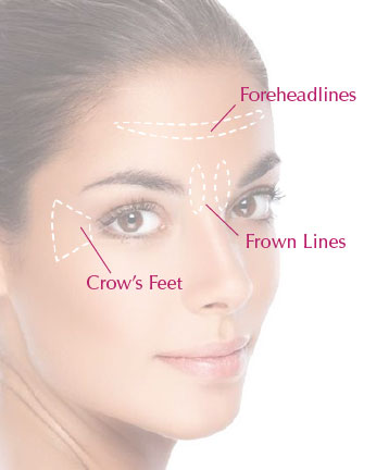 Anti-wrinkleinjectionSites